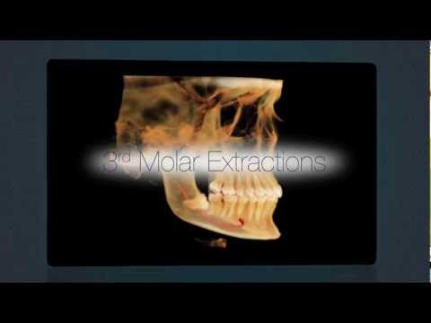 Advanced Dental Implant Imaging in Chicago at ORA Oral Surgery & Implant Studio