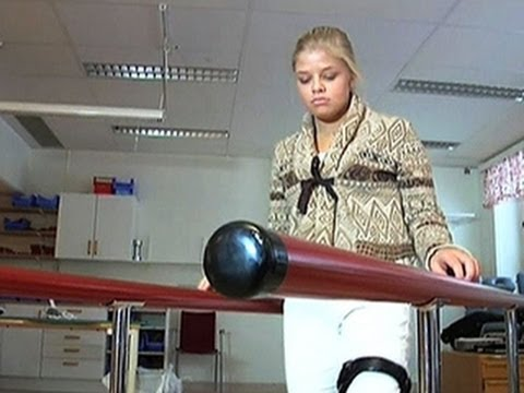 Teen Walking Again After 3d-printed Hip Implant video
