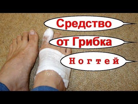Эффективное лечение ногтей ног в домашних условиях
