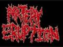 Artery Eruption de Petrified [video]