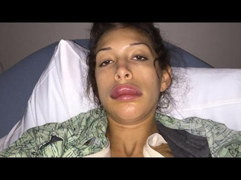 Farrah Abraham Just Received The Worst Lip Injects Ever