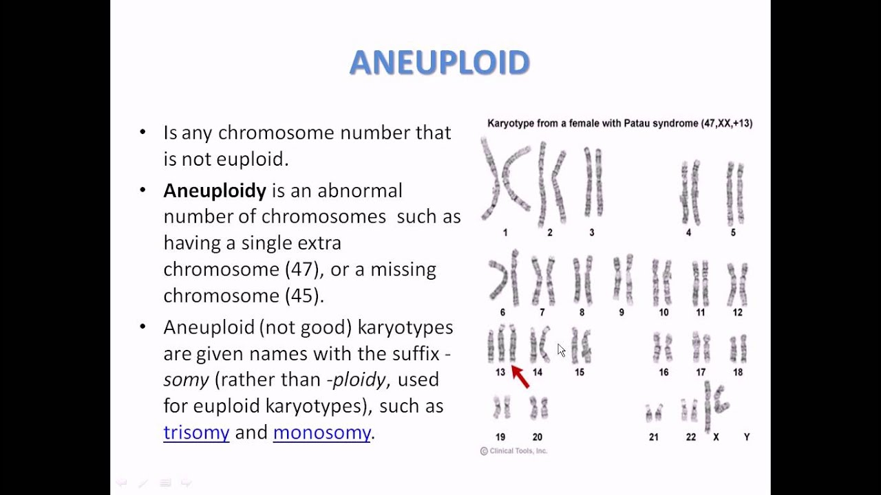 What is aneuploidy