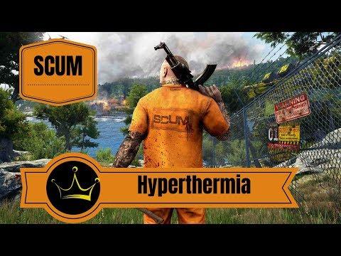Behandeln von Hyperthermia | Scum DEUTSCH