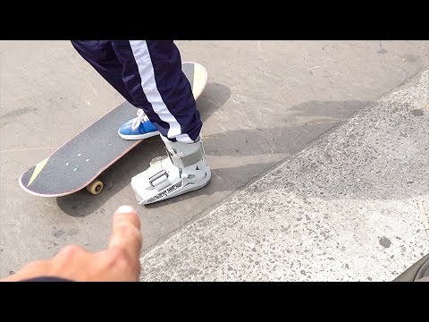 SKATER DOES TRICKS WITH BROKEN FOOT!!