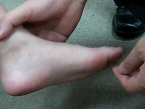 Footdisc check Kids with Hallux Valgus feet 富足康為拇指外翻兒童服務 Video