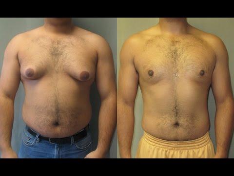 التخلص من دهون الصدر عند الرجال الجينو Gynecomastia thumbnail
