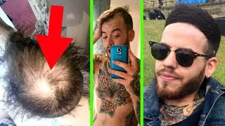 HIDING HAIR LOSS FOR 5 YEARS - *How I BEAT BALDING - Baldcafe Podcast 25