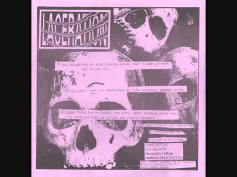 Bad Acid Trip - Dig Up Your Dead