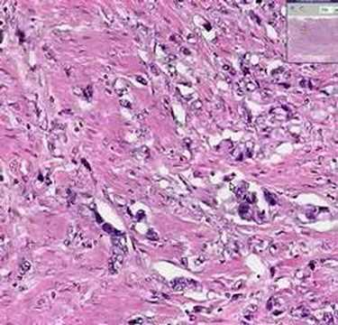 Histology Of Esophagus. Histopathology Esophagus--