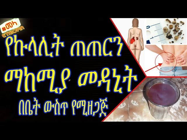 Home Remedies for Kidney Stones in Amharic