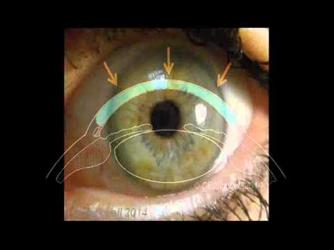 The Cornea: A Remarkable Structure