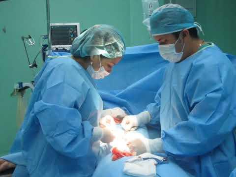 Campaña de cirugias de hernias Rotary San Salvador Cuscatlan 2013
