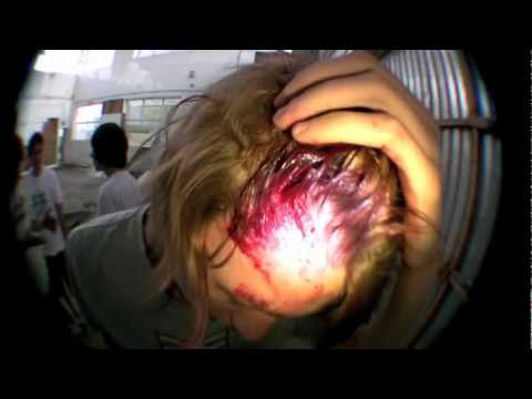 Skateboard to the face Music Videos