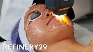 I Got The $65 Laser Facial For Acne   Beauty With Mi   Refinery29