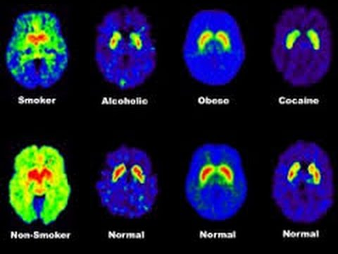 addiction and the brain essay