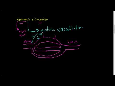 #46-Hyperemia vs. Congestion