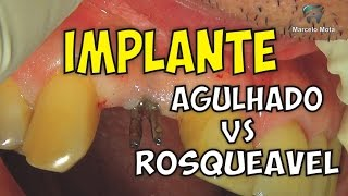 IMPLANTE AGULHADO x ROSQUEÁVEL / DENTAL IMPLANT SURGERY