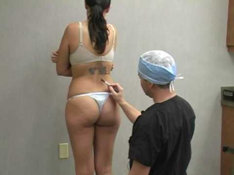 Liposuction / Lipo Procedure with Dr. William Hall: Kelli Documentary