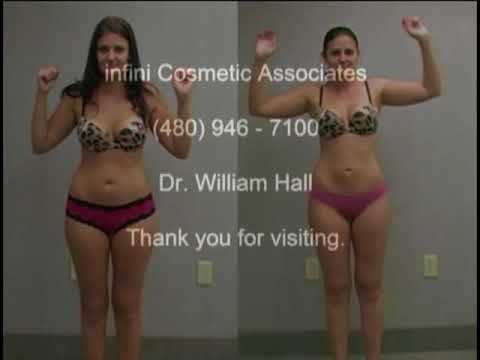 Liposuction / Lipo Procedure with Dr. William Hall - Kelli Documentary