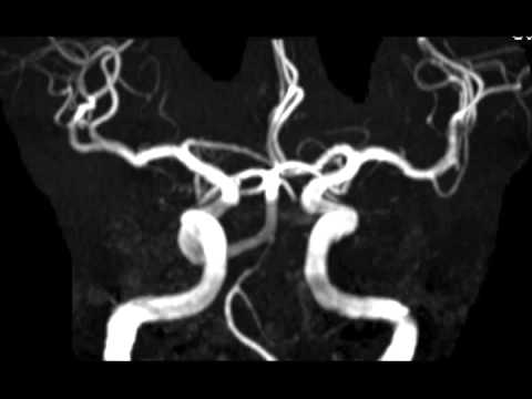 Artery Persistent Persistent Trigeminal Artery