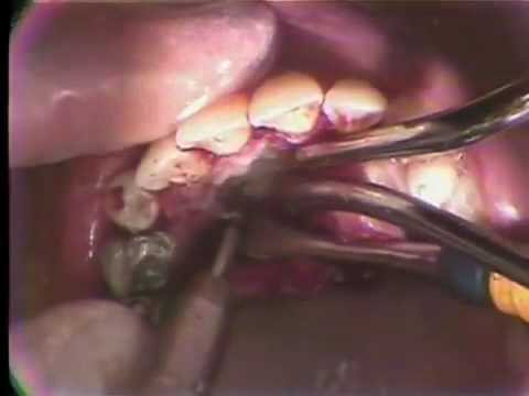 Maxillary Canine Impaction