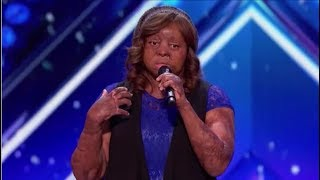 Meet Kechi: Plane-crash Survivor Fights Back Through Singing | Auditions | America's Got Talent 2017