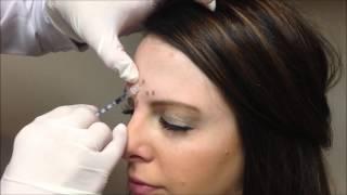 Allergan Botox Injections