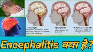 Encephalitis kya hota hai(हिंदी में)?Encephalitis vs meningitis,Acute encephalitis syndrome