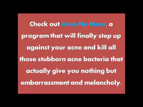 Zinc for acne | Chin acne | Hormonal acne treatment