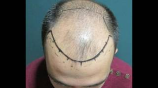 Hair transplant-Before and After 3500 Grafts