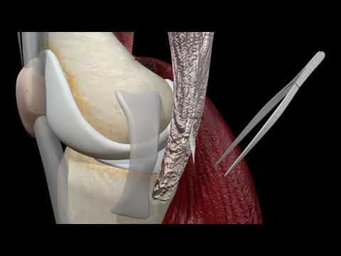 ACL Surgery - 3D Reconstruction