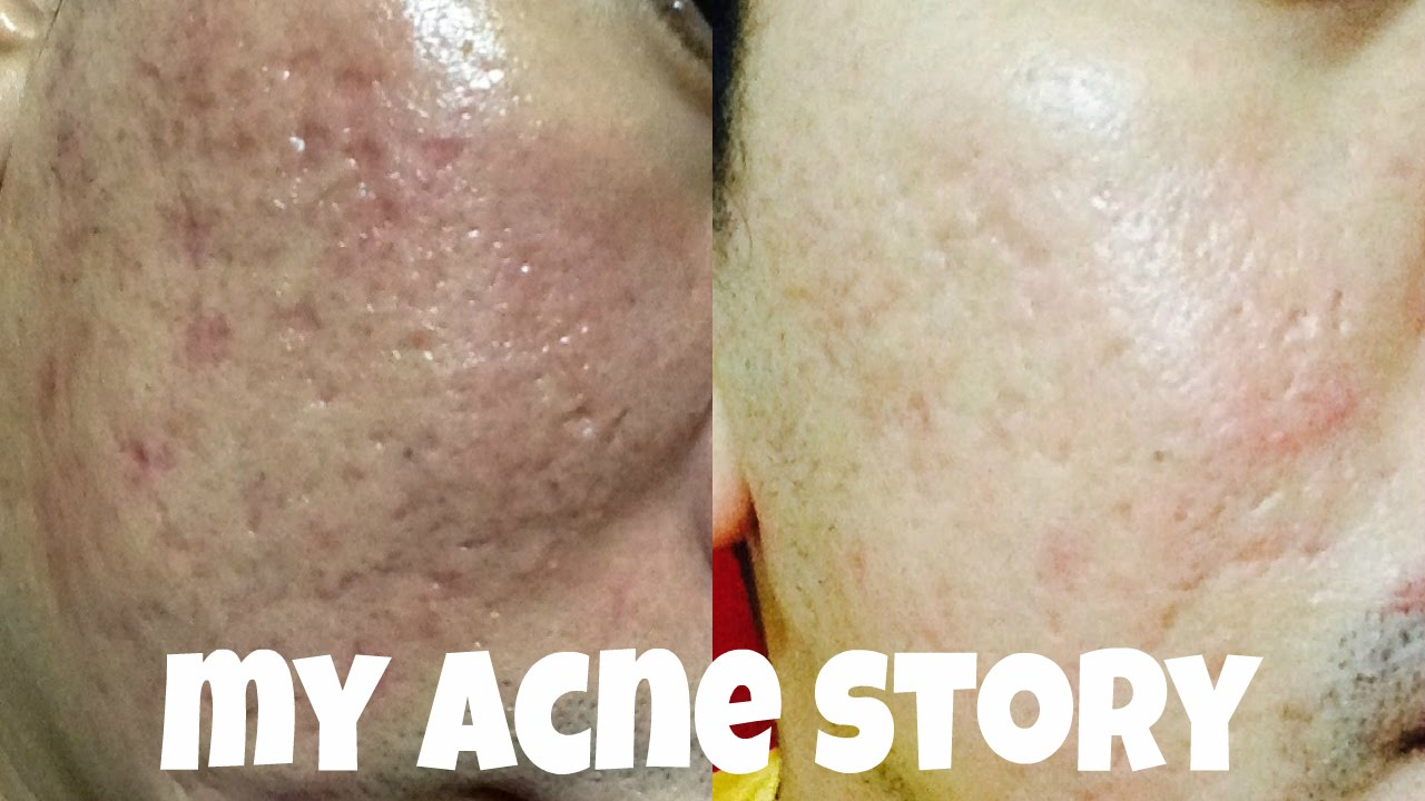 severe acne after steroids