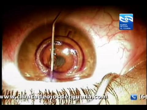 queratocono Video Cirugia (keratoconus, Keraring) , Clinica de ojos de Tijuana