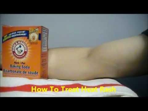 How To Treat Heat Rash Prickly Heat using Baking soda
