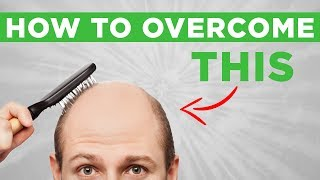 Hair Loss: How I'm Handling Going Bald — and How You Can Conquer Your Own Insecurities