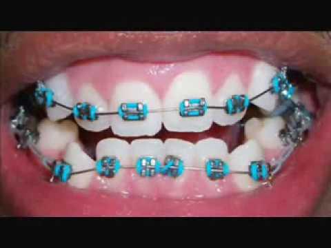 Braces Progress 0 to 6 Months