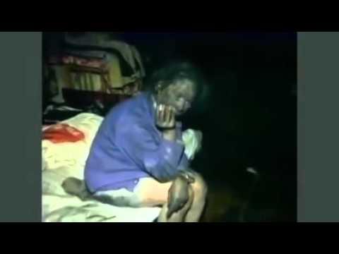 пьяная баба в коме