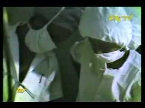 Eritrea - EPLF FACIAL Reconstruction SURGEON (Part 1)