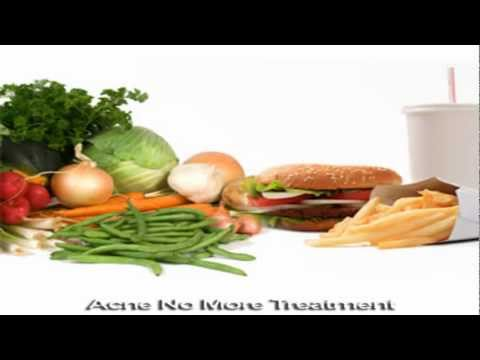 How To Prevent Acne : With Eating The Correct Foods Are Highly Effective In Resolving Acne