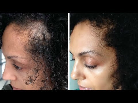 How to Grow Your Edges Back Fast!!! Update