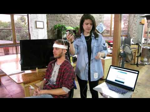 Alpha Waves of the EEG