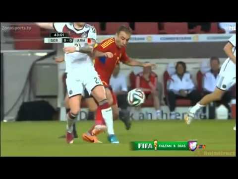 Marco Reus Injury Germany vs Armenia 06 06 2014