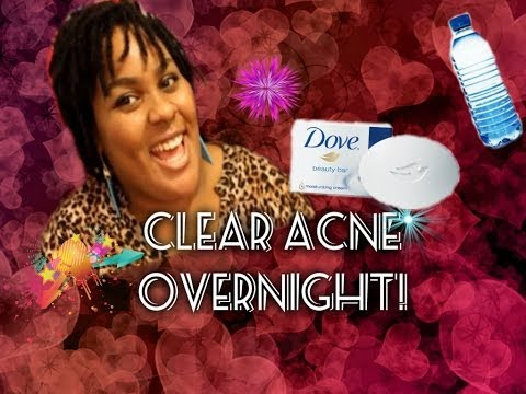 Clear acne overnight!!