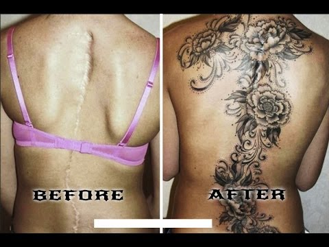 Amazing Scar-Covering Tattoos - Epic Cover Up