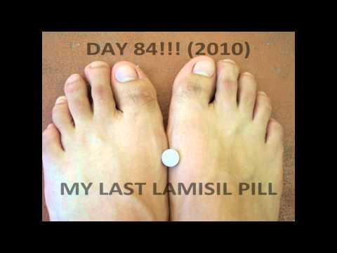 My 84 Day Lamisil Journey with 250mg pills. ( toenail fungus )