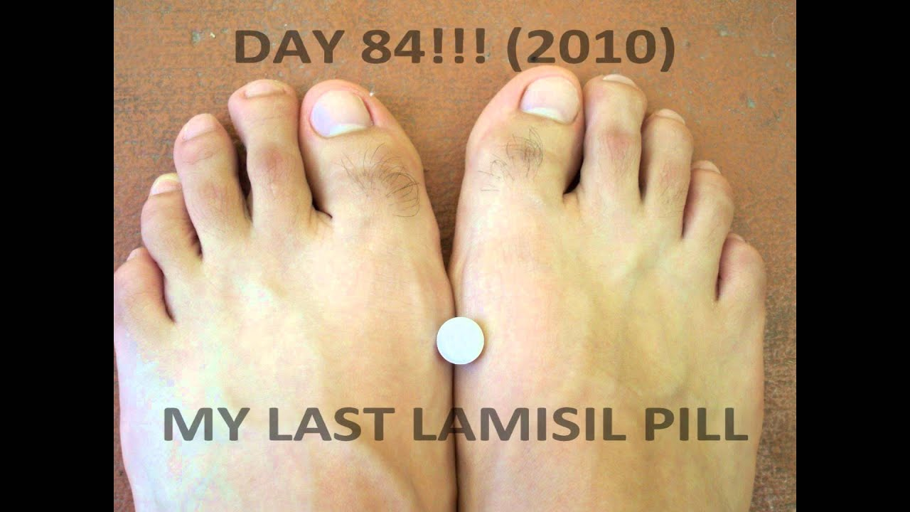 Lamisil Pills Vs Cream