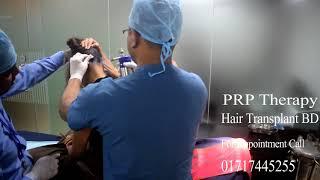 PRP Hair Treatment in Dhaka Bangladesh