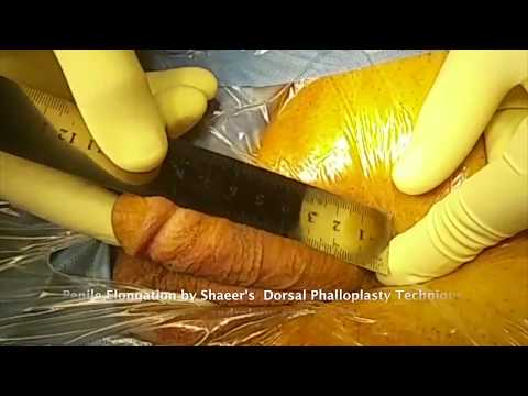 Shaeer's Dorsal Phalloplasty for Penile Elongation
