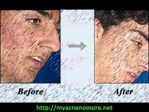 Best Acne Treatment Review Best Acne Treatment Revealed [LEAKED]