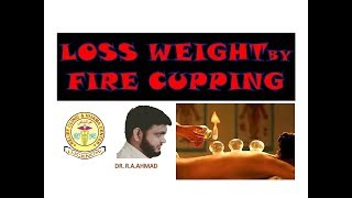 FIRE CUPPING FOR WEIGHT LOSS : BURN BELLY FAT / HIP FAT/CHEST FAT / RESHAPE  BODY